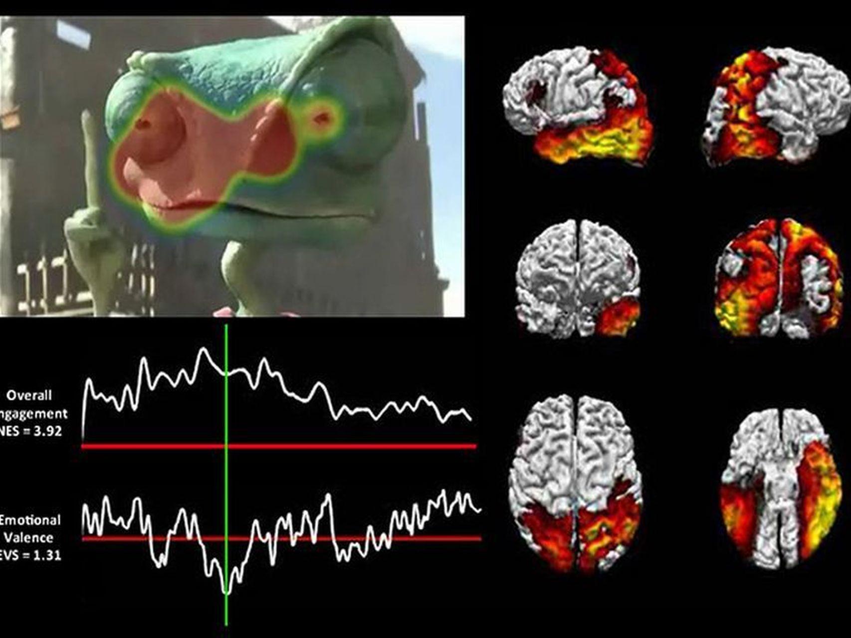 Tecnicas-neuroimagen-aplicadas-cine_91000936_381612_1706x1280